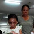 Bé 4 tuổi bị đánh dã man: Cho tiền có giúp trẻ tốt hơn?