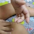 Tin tức - TQ: Bé 4 tuổi bị cô giáo đánh bầm tím khắp người