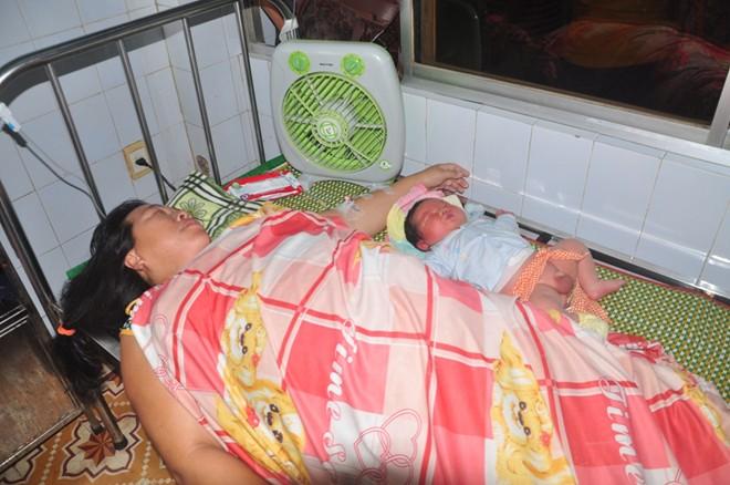 san phu 102 kg sinh 4 con cung co can nang khac thuong - 2