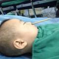 Y tế - TQ: Bé trai 2 tuổi bị đũa chọc từ mũi lên não