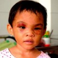 Tin tức - Bé 4 tuổi bị bạo hành được giải cứu do dân mật phục
