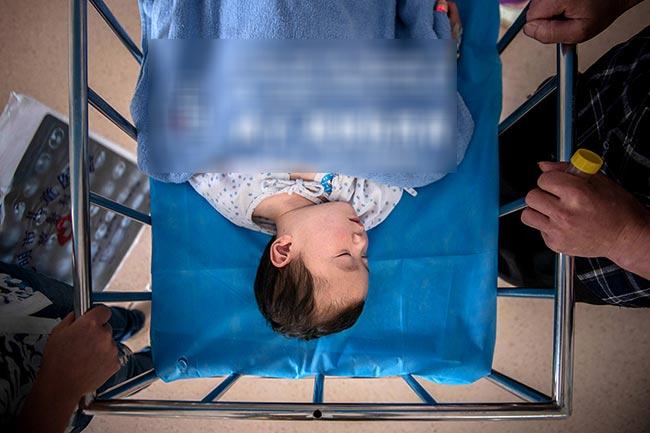 Hao Ran đang nằm ngủ lặng lẽ trên giường sau gây mê. Từ khi 12 tháng tuổi, em đã phải sống ở bệnh viện vì nguy cơ nhiễm trùng do mắc virus adeno khiến viêm phổi nặng, viêm tiểu phế quản tắc nghẽn. Đến nay Hao Ran 4 tuổi, đã coi bệnh viện là nhà. Cha cậu bé đã chạy vạy, vay tiền khắp nơi để có thể tiếp tục duy trì chữa bệnh cho con trai. Tình yêu của ông dành cho cậu con trai nhỏ của mình khiến nhiều người không thể cầm được nước mắt.