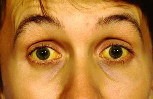 Nguyên nhân, triệu chứng viêm gan B ở trẻ nhỏ-1