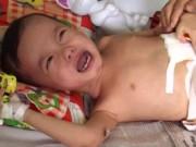 Y tế - Bé trai 3 tuổi bị đánh vỡ đại tràng từng bị bạo hành?