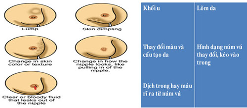 ung thu vu – can benh cua the ky 21 - 1