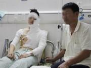 Pháp luật - Nghi án nam sinh bị tạt axit vì chuyện tình cảm