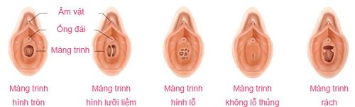 Có thai sau khi bị dính tinh trùng của bạn trai lên quần?-2