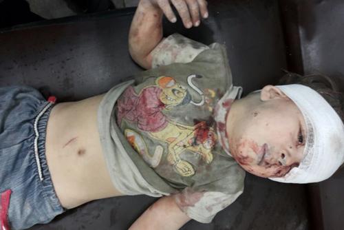 cau be syria day bui va mau loi ra tu ngoi nha bi danh bom khien ca the gioi bang hoang - 4