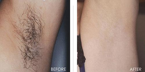 Bất ngờ vì công dụng triệt lông không đau không rát của nước chanh-6
