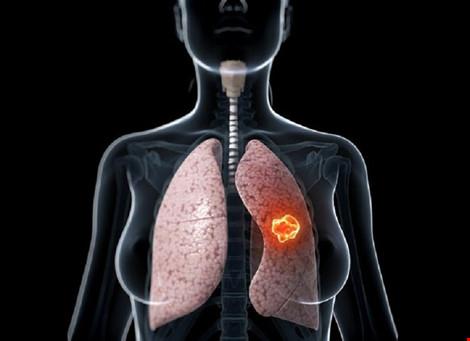 Ung thư phổi là nguyên nhân hàng đầu gây tử vong ở nam giới-1