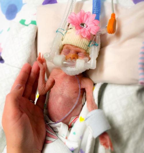 Cặp song sinh đẻ non 23 tuần bé bằng chai nước sống sót kỳ diệu-2