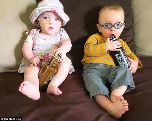 Cặp song sinh đẻ non 23 tuần bé bằng chai nước sống sót kỳ diệu-3