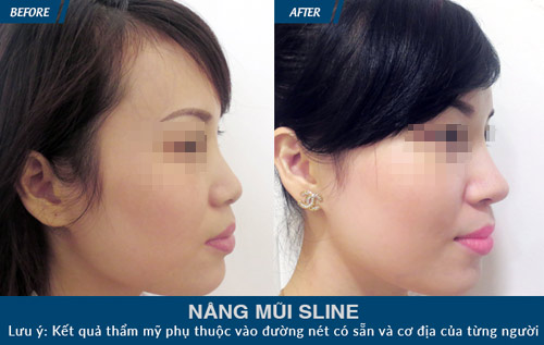 nang mui sun tu than – tinh loi tinh hai the nao? - 4