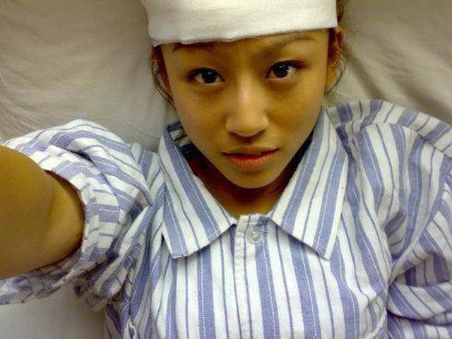 Cô gái 22 tuổi qua đời vì ung thư gan: 3 thói quen xấu đến sức khỏe người trẻ cần dừng ngay lập tức