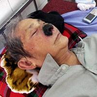 Ông già có gần trăm con dòi trong mũi