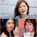 Làm đẹp - Chae Rim 'thảm hại' sau phẫu thuật thẩm mỹ