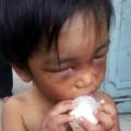 Tin tức - Bé trai bị tra tấn: Hành vi tàn ác của người cậu