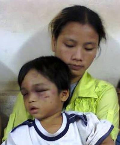 Bé 3 tuổi bị tra tấn: Tấn bi kịch truyền kiếp-1