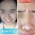 """Làm đẹp - Cô gái Việt """"nát mặt"""" vì mỹ phẩm trôi nổi trên mạng"""