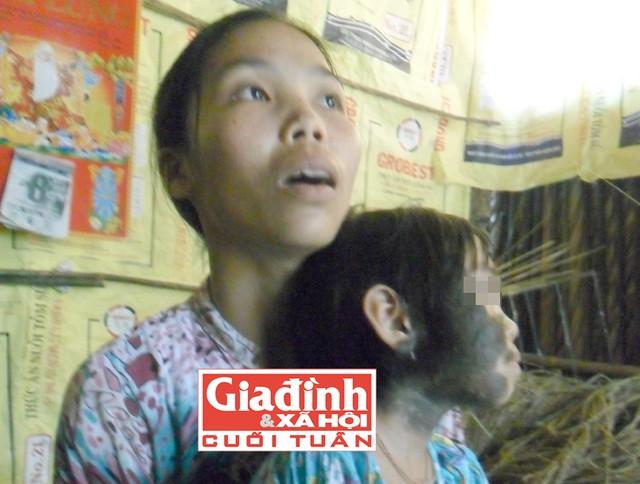 cuoc song khon kho cua be gai bi long moc khap nguoi - 1