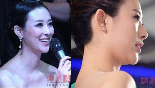 """nhung bang chung to cao nguoi dep """"dao keo"""" - 8"""
