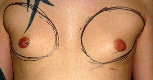 Hé lộ quá trình nâng ngực của đàn ông - 3