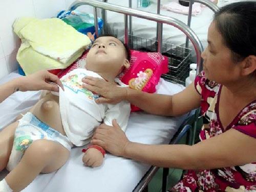 Bé trai 6 tuổi bị cha mẹ bỏ rơi vì mắc bệnh bại não-1