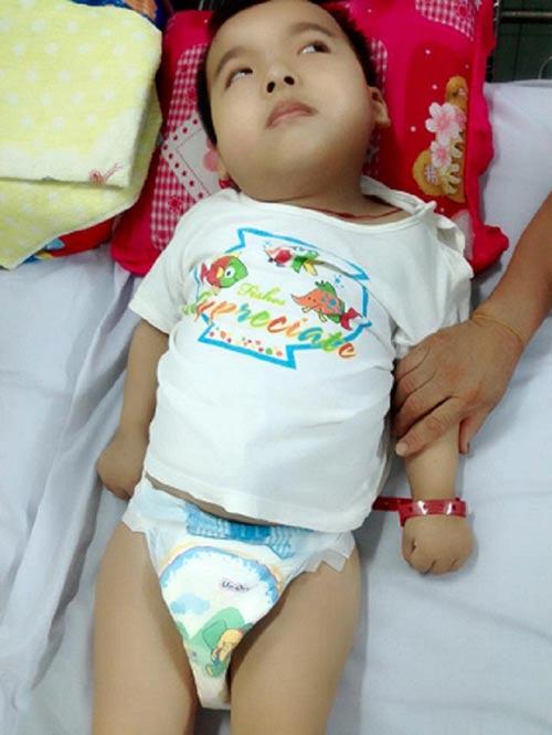 Bé trai 6 tuổi bị cha mẹ bỏ rơi vì mắc bệnh bại não-2
