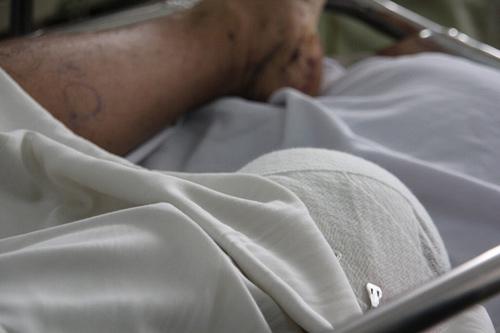 Sập giàn giáo, một nạn nhân bị vỡ xương chậu-2