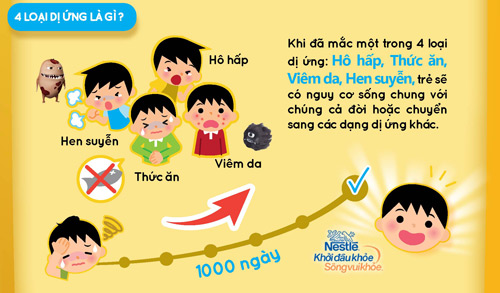 infographic: danh gia nguy co di ung cho be ngay! - 3