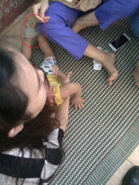 Sở GD-ĐT đề nghị xử lý cô giáo nhét giẻ vào mồm trẻ-1