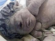 Tin tức - Đau lòng em bé sinh ra với một mắt giữa trán, không mũi