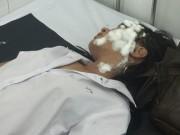 Tin tức - Hai nữ sinh bị tạt axit trên đường đi học về
