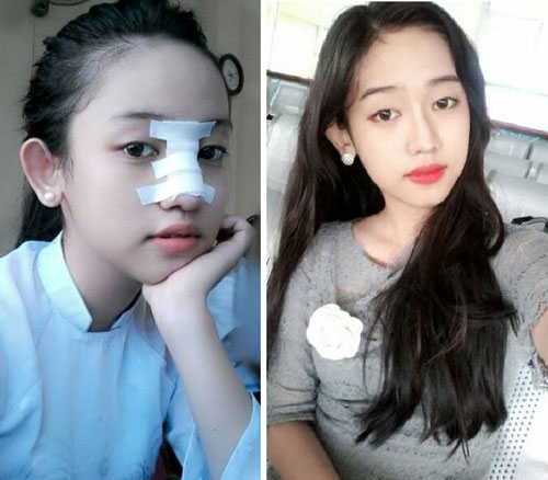hot girl trong chuyen tinh midu - phan thanh pttm tu nam 16 tuoi - 1