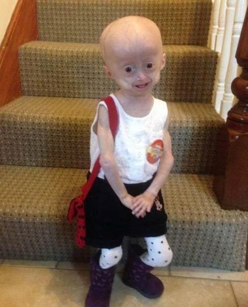 Bé gái 5 tuổi hóa bà lão vì căn bệnh hiếm gặp-1