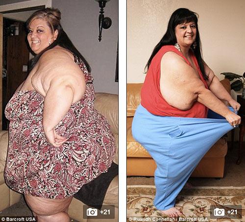 """nguoi phu nu nang 327kg vi bi ban trai """"am tham"""" vo beo - 8"""