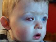 Làm mẹ - Bé 18 tháng tuổi hỏng 1 mắt vì máy bay đồ chơi