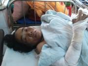 Y tế - Bé 13 tháng tuổi phỏng nặng vì xăng để trong nhà