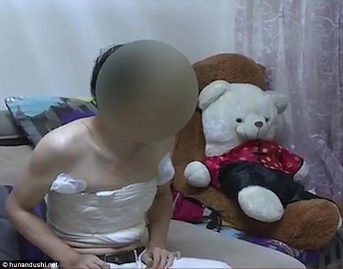 Nam thanh niên chi 130 triệu nâng ngực cho giống phụ nữ để dễ xin việc-2
