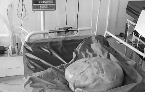 """""""Mang thai"""" nhiều tháng không đẻ, bà mẹ vẫn quyết không đi khám-2"""