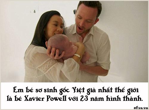 """nhung chuyen sinh no dac biet khong ai co the """"dung hang"""" - 10"""