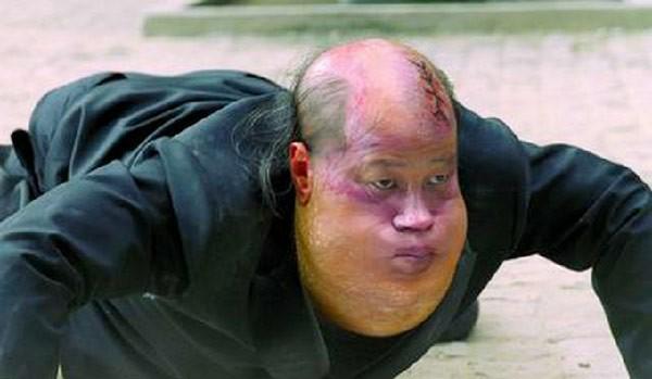 """bi kich dan sao """"tuyet dinh kungfu"""": nguoi benh tat, ke khong co nha de o - 5"""