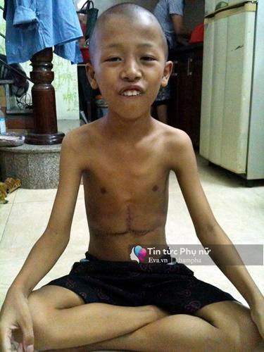 """nguoi me gia 7 nam lam boc vac, an """"com vien"""" 10 nghin dong cuu con ung thu - 2"""
