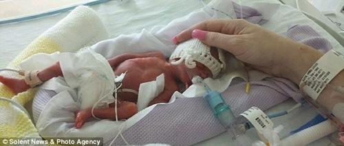 Phép màu kỳ diệu xảy ra với ca sinh 3 bé trai nặng chỉ 0,4kg - 1