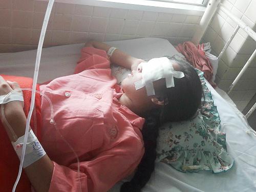 Nữ sinh xinh đẹp bị nhiều mảnh vỡ mũ bảo hiểm đâm vào mặt-1