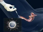 Bơm tinh trùng một cách thô sơ vẫn có thể thụ thai
