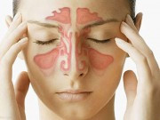 Tin tức sức khỏe - Phân biệt viêm mũi dị ứng và viêm mũi không do dị ứng