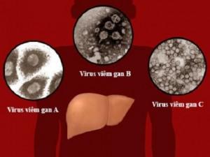 Bệnh viêm gan mỗi năm cướp đi sinh mạng của 1,4 triệu người