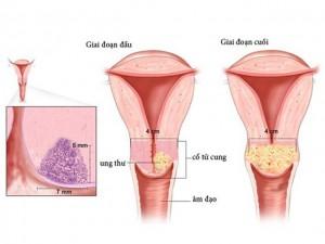 Chuyên gia đầu ngành chia sẻ 4 bước phát hiện sớm ung thư cổ tử cung