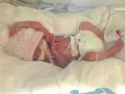 Bà mẹ kể lại giây phút kinh hoàng khi sinh non 23 tuần